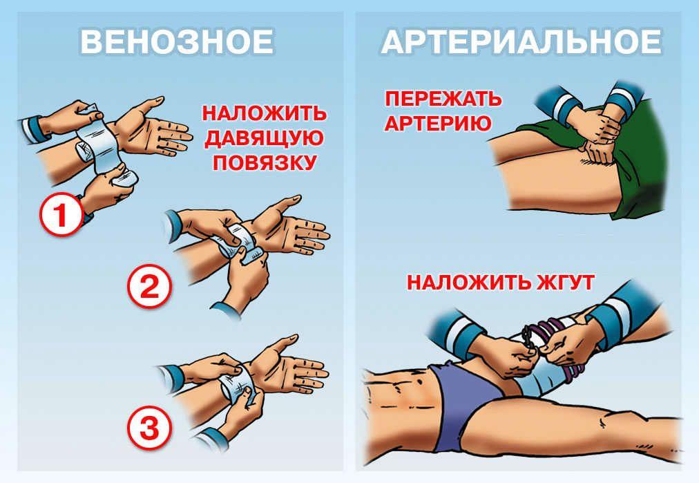 Организационно-правовые аспекты оказания первой помощи - Первая помощь - МЧС России