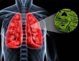 Профессиональный туберкулез медицинских работников Профдиагноз очаговый туберкулез верхней доли левого легкого в фазе инфильтрации 1 А ВК Туберкулез у больной был выявлен при очередном профосмотре